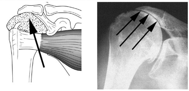 Μετατόπιση της κεφαλής προς τα άνω σε μαζική ρήξη του τενοντίου πετάλου του ώμου METATOPISI