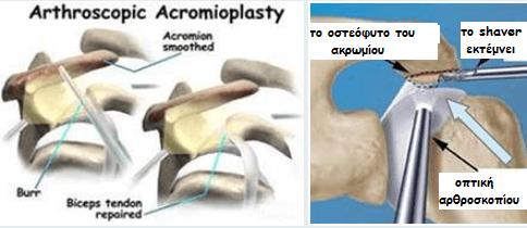 acromoplasty acromoplasty