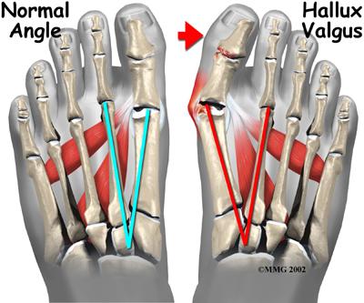 Είναι ορατή η μεγαλύτερη γωνία (κόκκινη) ανάμεσα στο 1ο και 2ο μετατάρσιο σε HalluxValgus απ ότι η μπλέ χρώματος, σε φυσιολογικό πόδι. angle