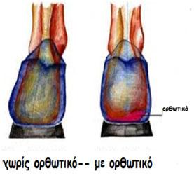 Αντιμετώπιση βλαισής πτέρνας με ορθωτικό πέλμα antimetopisi
