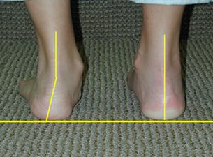 Παρατηρήστε την απόκλιση της πτέρνας προς τα έξω στο ΑΡ πόδι (επικέντρωση) apoklisi