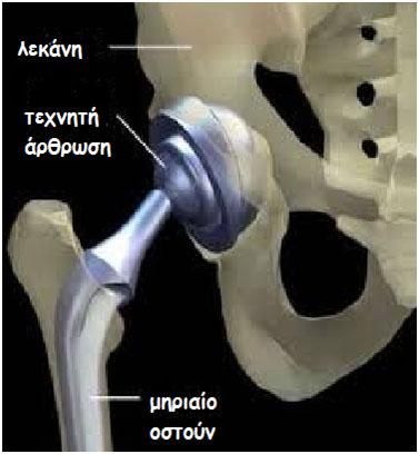 Αρθροπλαστική: είναι η αντικατάσταση της κατεστραμμένης άρθρωσης από τεχνητή άρθρωση. arthoplastiki
