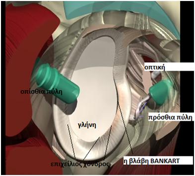arthoskopisi arthoskopisi 1