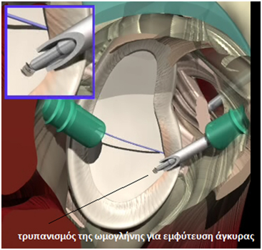 arthoskopisis arthoskopisis