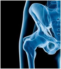 osteoarthritida osteoarthritida 1