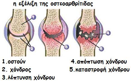 osteoarthritida-gonatos osteoarthritida gonatos