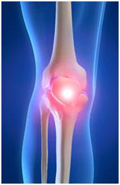 osteoarthritida osteoarthritida