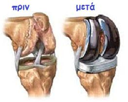 osteoarthritides osteoarthritides