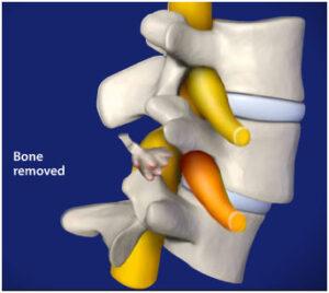 Arthoskopisi-omou osteofita 300x268