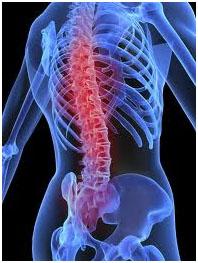 osteoporosi osteoporosi