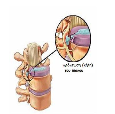H πίεση του ραγέντος δίσκου πάνω στα νευρικά στελέχη προκαλεί και την ανάλογη συμπτωματολογία spondiliki stilh