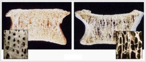 Arthoskopisi-omou tomi 1 300x128