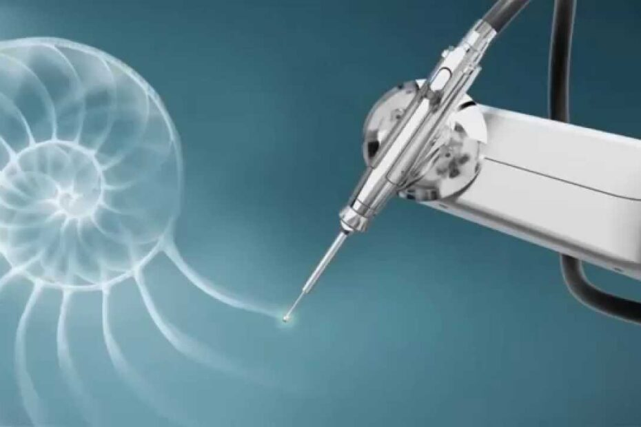 robotic arthroplasty robotikh arthroplastikh 930x620